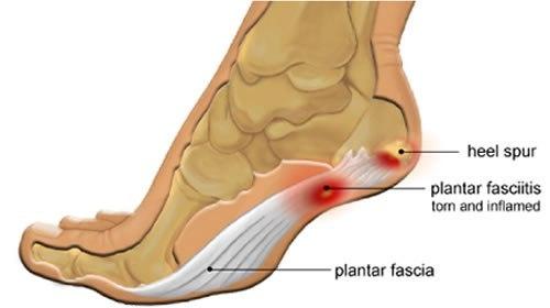 Heel Spur or Plantar Fasciitis